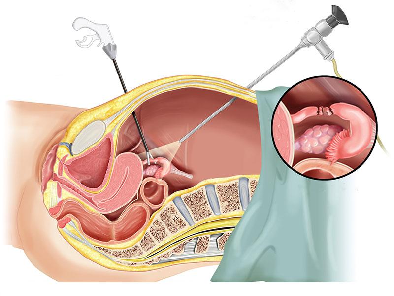Laparoscopia mioma uterino
